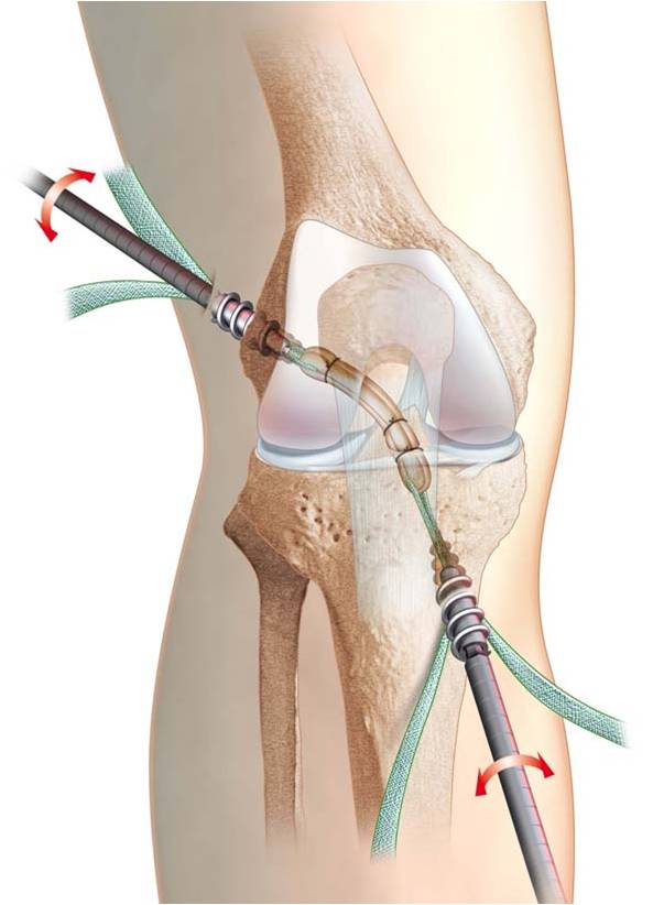 ligament knee surgery - 593×822