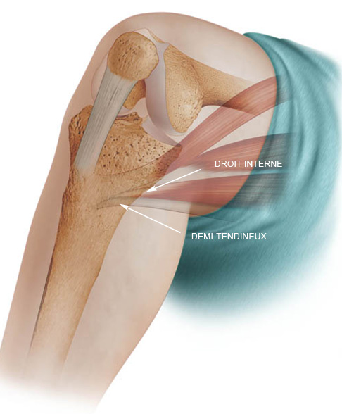 the skeletal attachment of tendons-tendon enthesis One or all of those tendons can get tendonitis and the muscle and connective tissue is just a much a player in shoulder injury as the tendon is a slap tear occurs at the point where the tendon of the biceps muscle inserts on the labrum (the socket where the arm bone meets the shoulder bones.