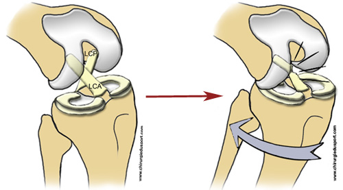 Treatments knee ligament operation of the anterior cruciate ligament acl or kj didt - Dessin du genou ...
