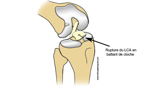 Pathology knee ligament rupture of the anterior cruciate ligament acl injury by beating bell - Dessin du genou ...